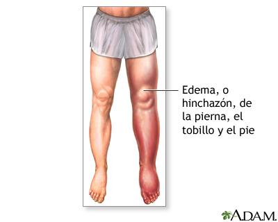 El procedimiento arreglar las venas en los pies