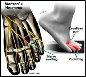 fisioterapeuta madrid 5