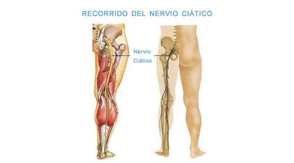 Recorrido del nervio Ciático