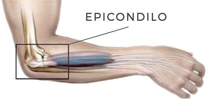 Epicodilo