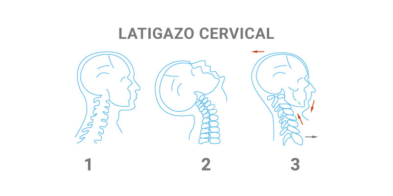 Latigazo Cervical II - Fisioterapia Goya