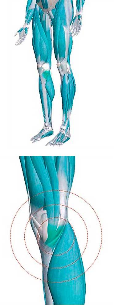 tendinitis de la pata de gansos
