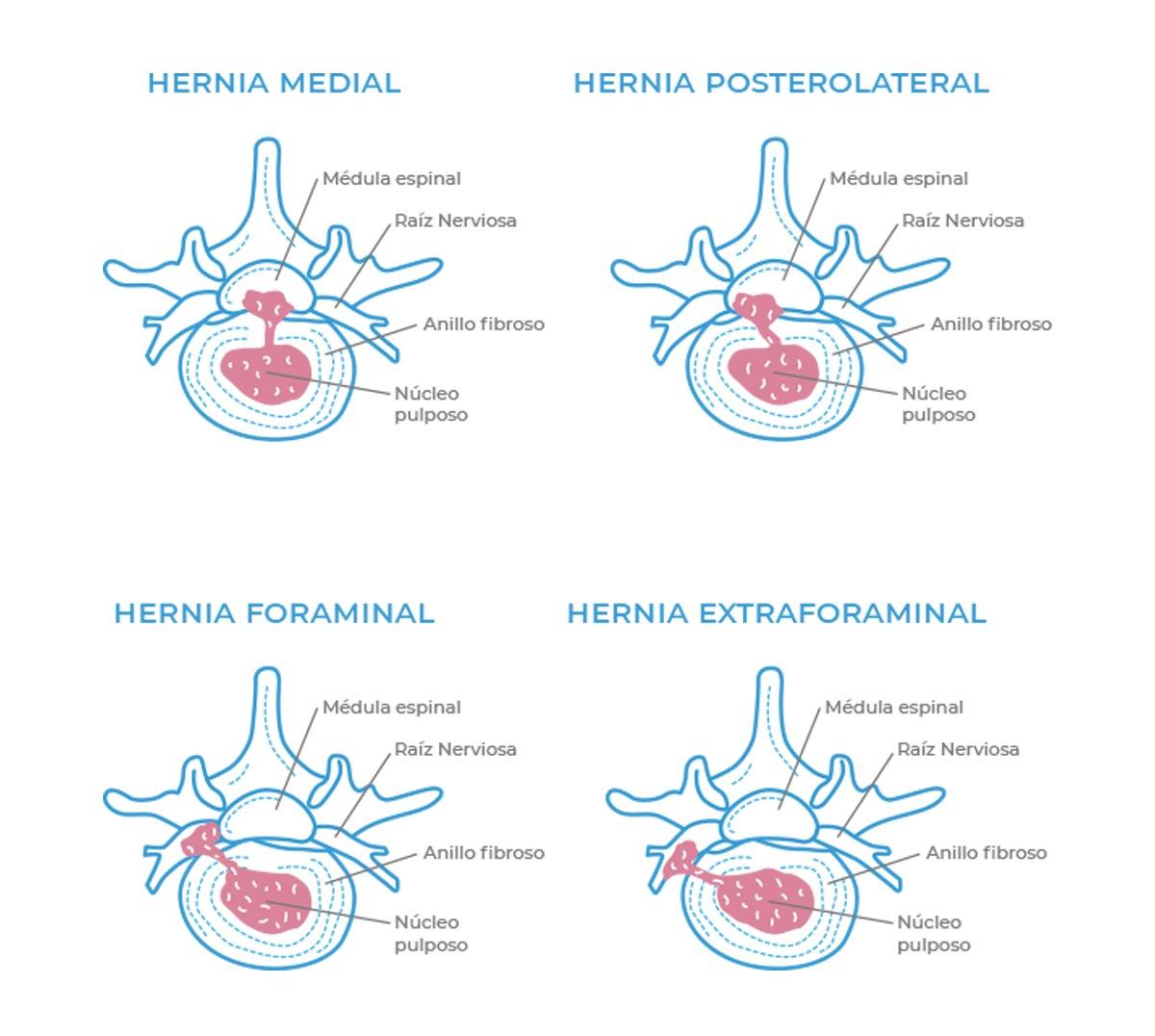 Tipos de hernias discales