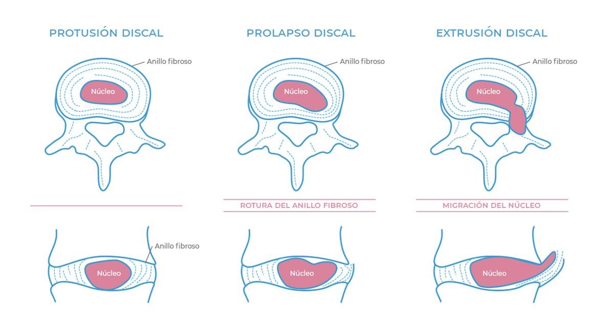 Tipos de protusiones