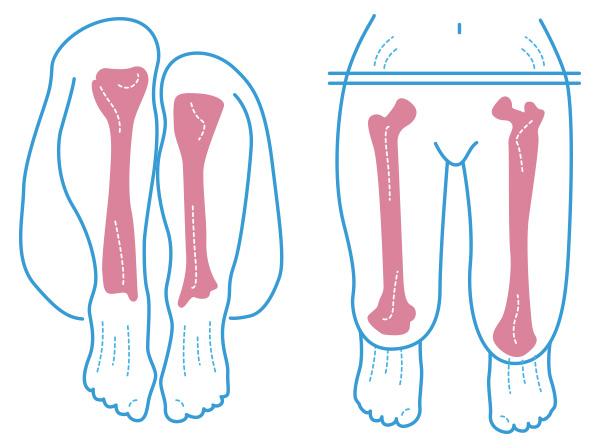 ¿Qué hacer si tengo una pierna más corta?